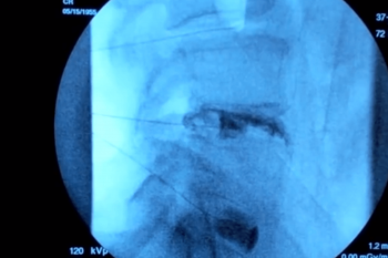 Assists in identifying the source of advanced, chronic back pain.Using imaging guidance, a contrast material is injected into the center of one or more spinal discs. As part of the procedure, an x-ray or CT scan also may be performed to obtain pictures of the injected disc. Though more invasive than some other imaging procedures, discography is generally safe.